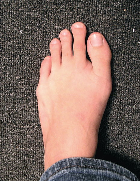 A bare foot on a black carpet